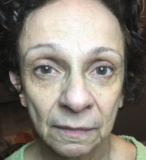 Before any facial treatments