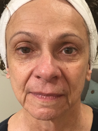 After 9 anti-aging treatments