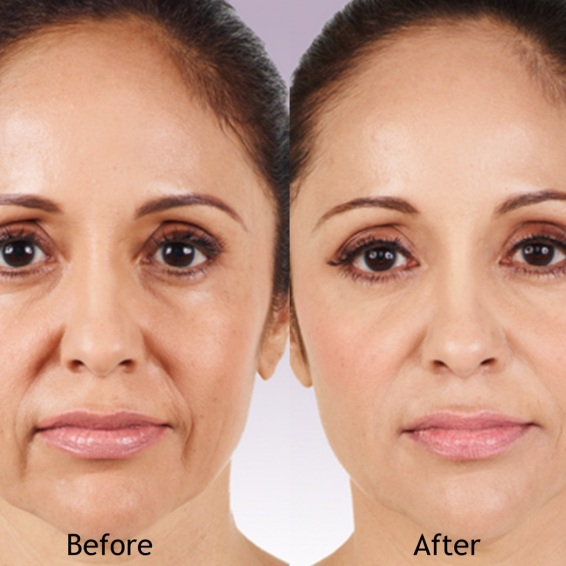 juvederm-filler-female-allergan